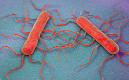 Listeria monocytogenes Kaese